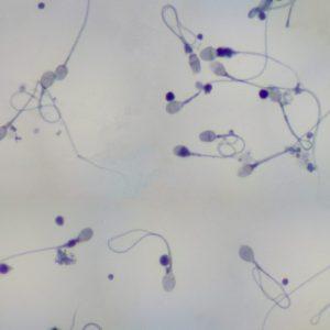 dlina-niti-v-spermogramme