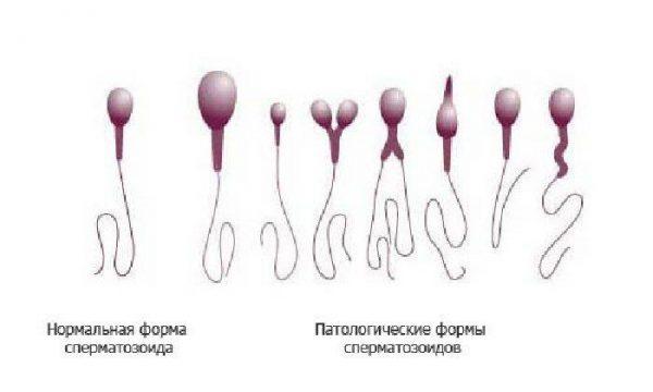 travi-pri-otsutstvii-spermatozoidov