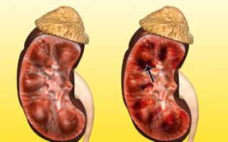 Виды и классификация некроза почек: симптомы и лечение