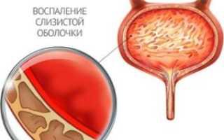 Народные средства лечения мочевого пузыря у женщин