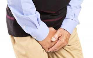 Боли при мочеиспускании у мужчин: причины, симптомы болезней