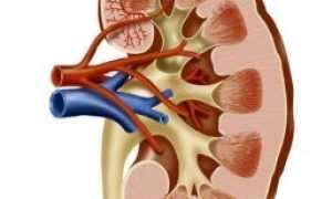 Причины возникновения обструктивного пиелонефрита: стадии, симптомы и лечение