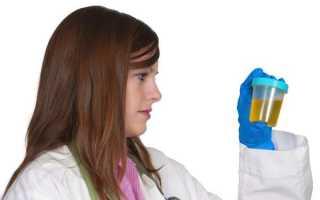 Причины появления осадка в моче у взрослых и детей