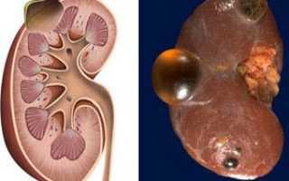 Причины образования кисты в почках, симптомы заболевания, хирургические и народные методы лечения