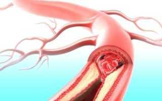Этиология стеноза почечных артерий: симптомы и лечение