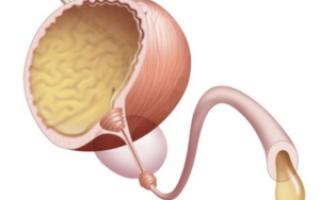 Лечение склероза шейки мочевого пузыря у мужчин