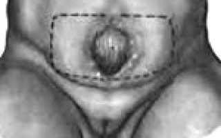 Что такое экстрофия мочевого пузыря, фото болезни у детей