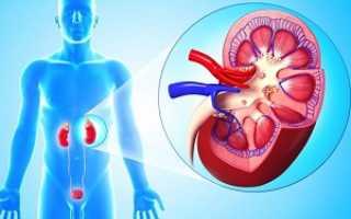 Причины образования кисты в левой почке: лечение и прогноз