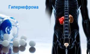 Признаки гипернефромы почек: лечение и прогноз