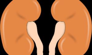 Виды гломерулосклероза почек: причины, симптомы и лечение