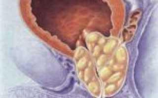 Иван чай при простатите: как пить кипрей и лечение аденомы простаты