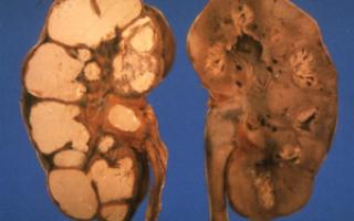 Причины развития туберкулеза почек: симптомы, лечение и прогноз