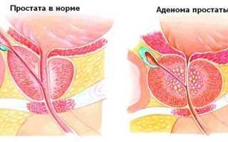 Причины, проявления и лечение дивертикула мочевого пузыря