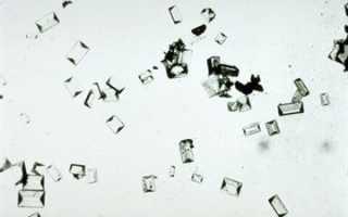 Кристаллы оксалата кальция в моче — явный признак нарушенного обмена веществ