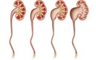 Причины пиелокаликоэктазии почек: виды болезни, симптомы и способы терапии