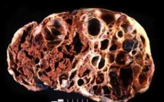Причины формирования губчатой почки: симптомы, диагностика и лечение