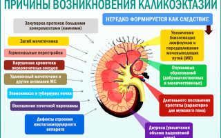 Этапы развития и характерные симптомы каликоэктазии почек: лечение и профилактика