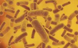 Виды бактериурии и причины ее появления
