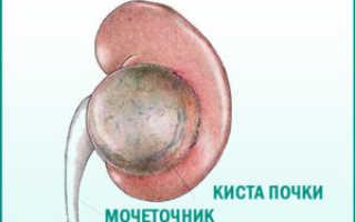 Причины образования субкапсулярной кисты в почках: симптомы и лечение