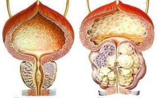 Болезни предстательной железы: симптомы, причины, лечение
