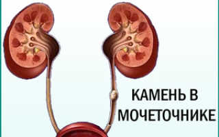 Кровь и боль при мочеиспускании у мужчин: возможные заболевания