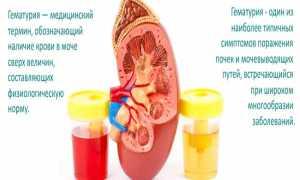 Недостаток аммония в моче может грозить повышенным риском смерти пациентам с почечными проблемами