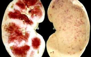 Виды и классификация необструктивного пиелонефрита: лечение и прогноз