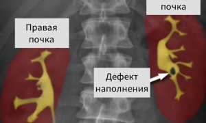 Симптомы нефрокальциноза почек: диагностика и лечение