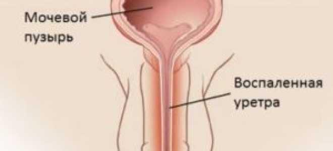 Народные методы лечения уретрита у мужчин и женщин в домашних условиях