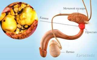 Появление кальцинатов в предстательной железе