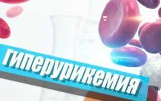 Высокое содержание мочевой кислоты в организме человека