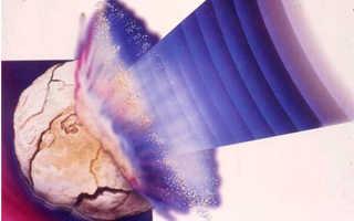 Способы использования литотрипсии для дробления камней в почках
