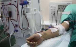Причины развития терминальной стадии при ХПН: симптомы и лечение