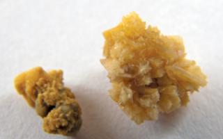 Причины возникновения оксалатных камней: симптомы, диагностика и лечение