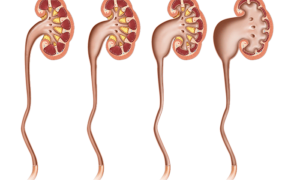 Степени гидронефроза: классификация, симптомы и лечение